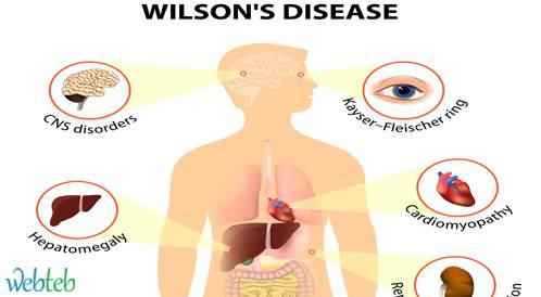 الأعراض النفسية لمرض ويلسون: العلاج والتشخيص