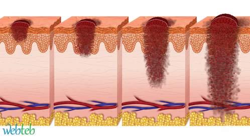 بحث ينجح في محاربة الأورام السرطانية بواسطة رصد وإرجاع خلايا T