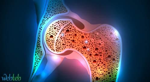 باراسيتامول و NSAIDs لمرضى ترقق العظام؟ ليس بالضرورة