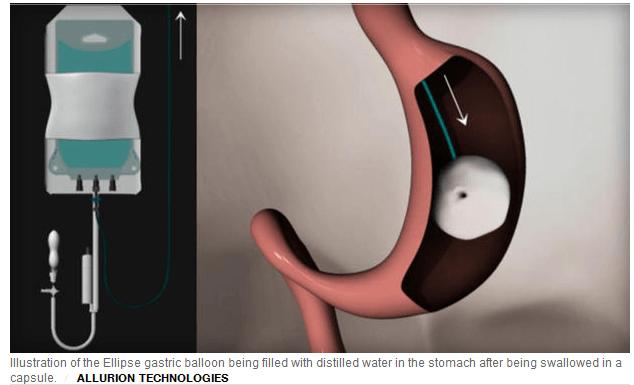 الموافقة على استخدام بالون elipse لخسارة الوزن