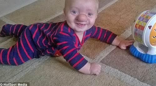 طفل يولد بحالة صحية نادرة تجعل دماغه ينمو داخل أنفه