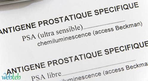 بحث يشدد على الحاجة لفحص PSA ثاني قبل القيام بخزعة للبروستاتا