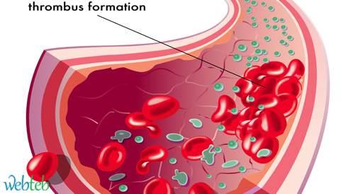 مضادات منع تخثر الدم المتواصلة مع الابيكسابين تقلل من الحاجة للعلاج في المستشفى
