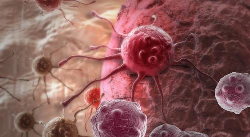 دراسة تكشف أن الإصابة بالسرطان اكثر من مجرد حظ سيء