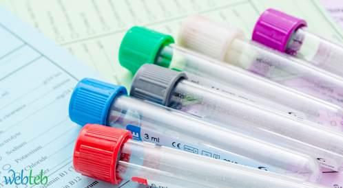 فحوصات المسح قد تقلل خُمس الوفيات من سرطان المبيض