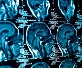 الاكتئاب الغير مبرر قد يكون بسبب ورم في الدماغ!