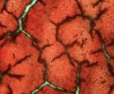 استباق حالات التجلط والنزيف أثناء العلاج بالأفيكسابين