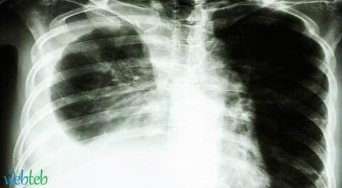 بيمبروليزوماب مقابل دوسيتاكسيل لدى مرضى سرطان الرئة
