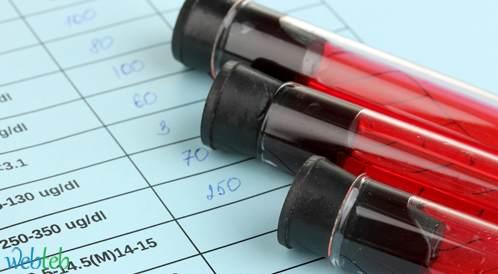 عدم توجه النساء لإجراء فحوصات الـ HIV في سن الخصوبة