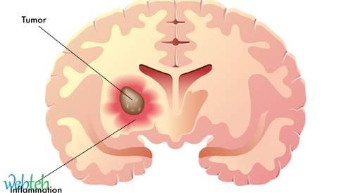 دراسة أمريكية: يمكن تصنيف الورم النخاعي لمجموعة فرعية ملائمة بشكل غير غزوي