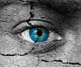 مرض جفاف العين بعد الجراحة الانكسارية