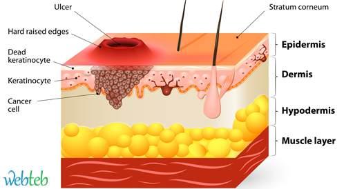حاملو HIV يتواجدون بخطر أعلى بـ 30 مرة لخطر سرطان الحرشفية