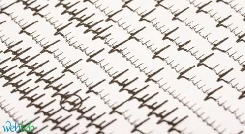 الرجفان الأذيني المزمن على خلفية فشل القلب يزيد من خطر ضعف الادراك