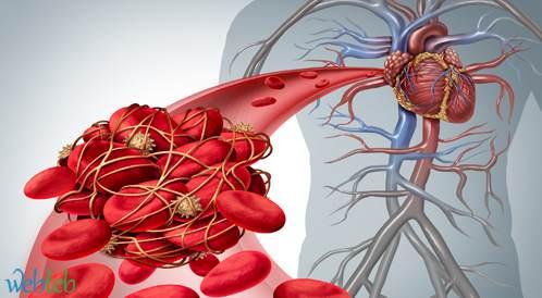 ايدروسيزوماب - الترياق الوريدي لإبطال نشاط الدفجترين