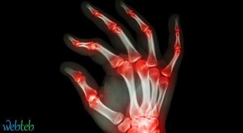 مصل RA لا يؤثر على تراكم الأمراض المتعلقة بالتهابات المفاصل في العائلة