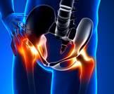 الإصابات السابقة في مفصل الورك تقلل من المجال الحركي للاعبي كرة القدم