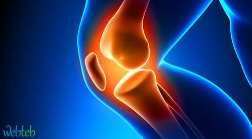 الإصابة بالركبة المصابة بالتهاب المفاصل تؤثر على أداء العضلات المقابلة