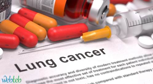 العلاج المناعي TG4010 مع العلاج الكيميائي هو الخط الأول لسرطان الرئة
