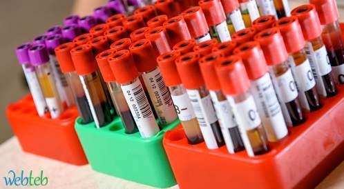 هل يضر ارتفاع مستوى الكوليسترول الجيد بصحة القلب؟