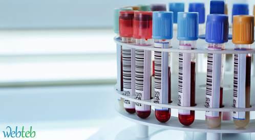 فحص دم بسيط قد يتنبأ بالتشخيص المبكر للزهايمر