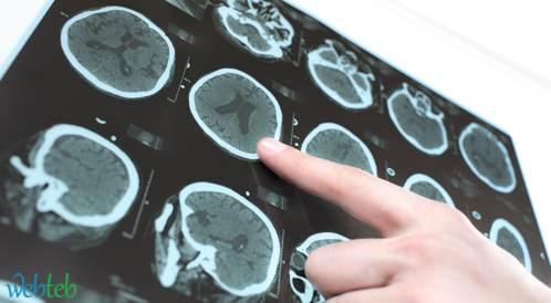 النزيف الحاد والسكتة الدماغية: العلاج المضاد للتخثر لدى مرضى الفشل الكلوي