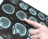 الفارينيكلين والأعراض الجانبية للقلب والأوعية الدموية