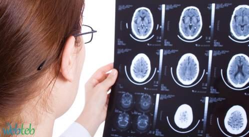 الجزء الأيمن من الدماغ يساهم في العلاج من السكتة ومضاعفاتها