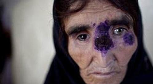مرض جلدي ينتشر في سوريا بسبب الحرب