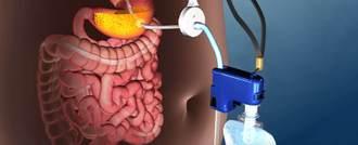 الـ FDA توافق على جهاز جديد لعلاج السمنة