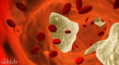الكوليسترول المرتفع قد يؤثر على قدراتك المعرفية