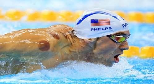 لماذا يستخدم السباح مايكل فيليبس الحجامة قبل الأولمبياد؟