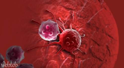 علاج سرطان القولون؟