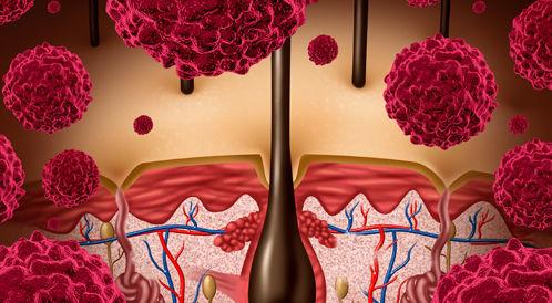 الولايات المتحدة: نشرت تعليمات جديدة لعلاج تلوثات الجلد والأنسجة الرخوة