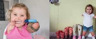 طفلة تعاود المشي بعد فقدان أطرافها