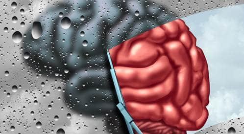 مرض باركنسون قد يبدأ من المعدة وينتقل للدماغ!