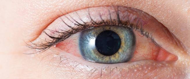 إزالة 14 دودة من عين إمراة في أمريكا