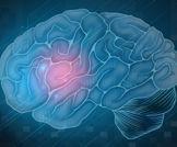 ارتفاع حاد في معدل حدوث السكتات الدماغية في جميع أنحاء العالم في العقود الأخيرة