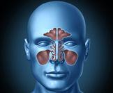IDSA: إرشادات جديدة لعلاج التهاب الجيوب الأنفية