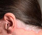 الأداليموماب لعلاج الصدفية المعتدلة والشديدة على فروة الرأس والأظافر