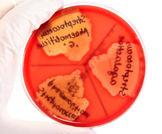 العملية المبكرة تعتبر ناجعة في علاج التهاب الشغاف العدوائي Infective Endocarditis