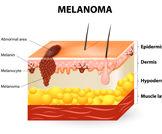 البقاء على قيد الحياة في سرطان الجلد النقيلي في عنبية العين