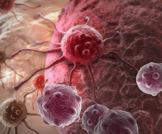 معايير للتنبؤ بالأورام الخبيثة تؤدي الى تحسين فوائد فحص ال- CT المنخفض الإشعاع