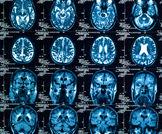 طريقة جديدة للحد من عمليات الفحص الإشعاعي CT للأطفال الذين يعانون من استسقاء الرأس