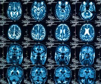 تغيرات جينية تزيد من خطر الإصابة بسرطان الرئة تقريبا بضعفين