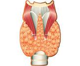 تثبيط هرمون الغدة الدرقية في الأورام السدوية المعدية المعوية  (GIST)