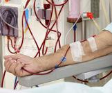 مرضى غسيل الكلى يعيشون لفترة أطول عندما يكون لدى الطبيب المعالج عدد قليل من المرضى