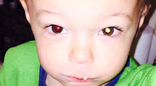 صورة على الهاتف الذكي تنقذ طفلاً من السرطان!