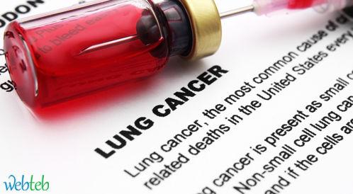 أمريكا تحصل على موافقة كوبا لدراسة علاج لسرطان الرئة