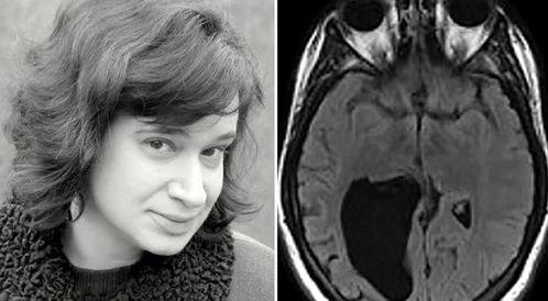 الأطباء يكتشفون فراغاً في دماغ المريضة!
