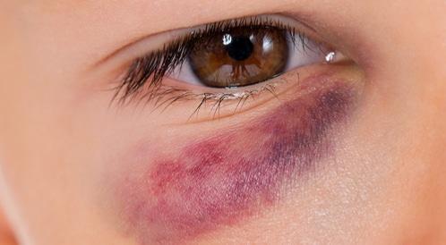 إصابات العيون الطفيفة والحادة: افعل ولا تفعل!
